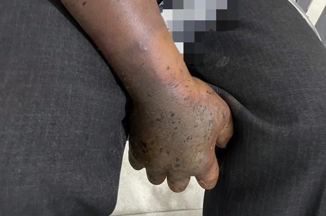 Hoại tử bàn tay do tự ý chữa vết rắn hổ mang cắn bằng thuốc nam - Ảnh 1.