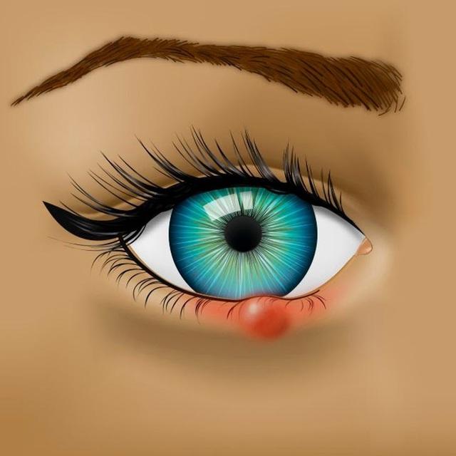 Đọc vị 8 vấn đề về sức khỏe biểu hiện qua đôi mắt - Ảnh 1.