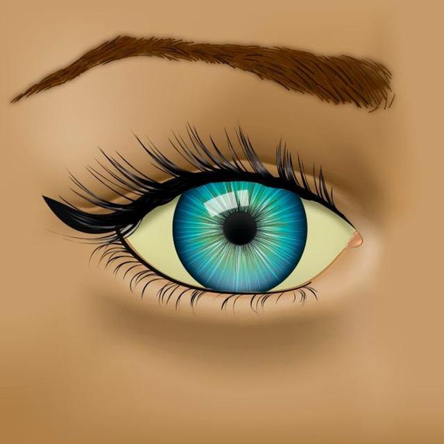 Đọc vị 8 vấn đề về sức khỏe biểu hiện qua đôi mắt - Ảnh 6.