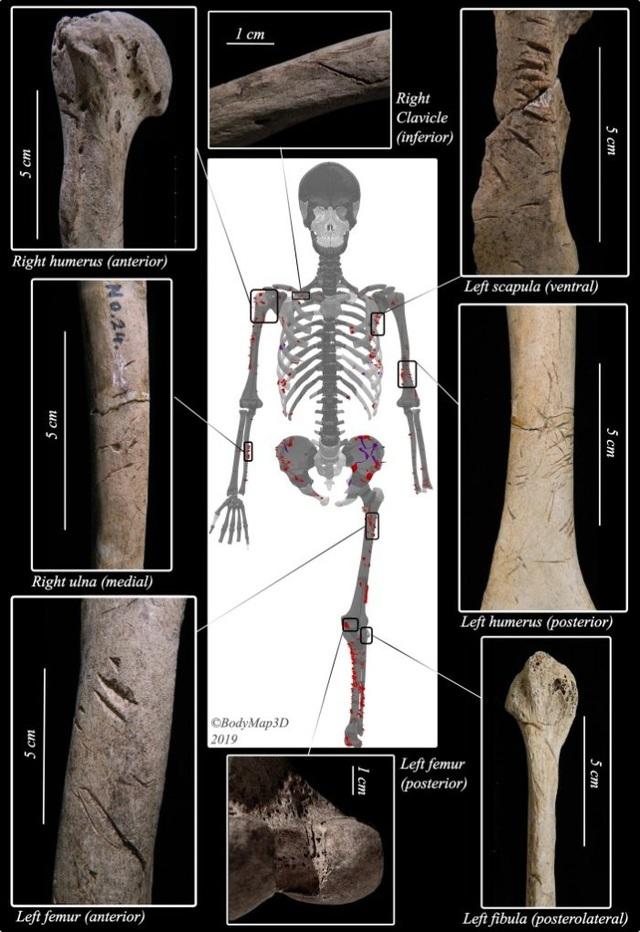 Phát hiện hài cốt của nạn nhân bị cá mập tấn công có niên đại 3.000 năm - ảnh 1