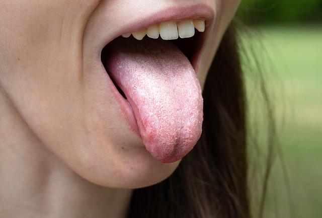 Nhận diện 7 vấn đề sức khỏe qua lưỡi của bạn - Ảnh 1.