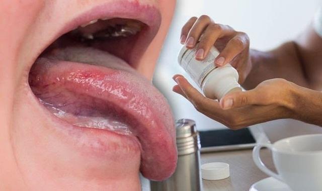 Nhận diện 7 vấn đề sức khỏe qua lưỡi của bạn - Ảnh 2.