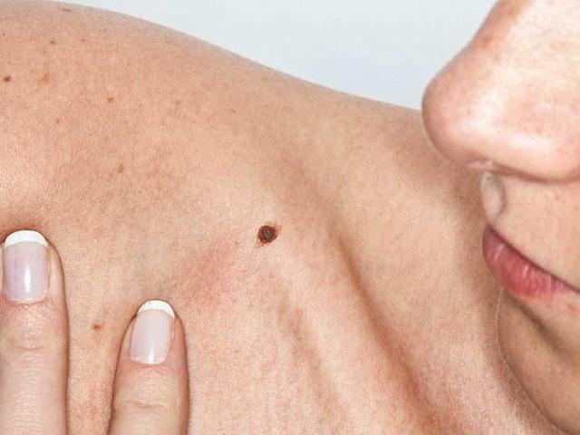 Cảnh báo 7 dấu hiệu ung thư sớm thường bị bỏ qua - Ảnh 2.