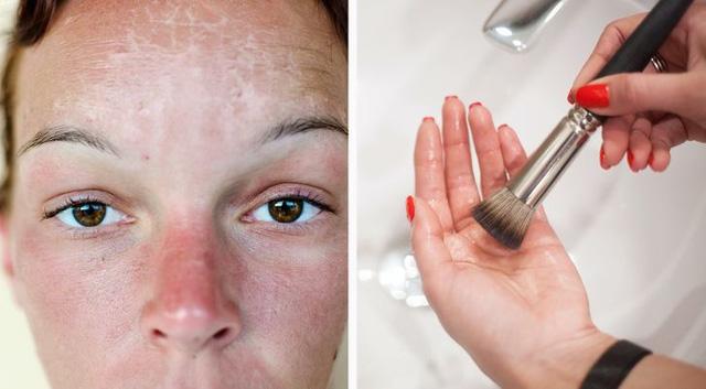 7 điều nguy hiểm cần tránh khi da của bạn bị cháy nắng - Ảnh 4.