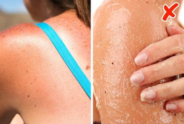7 điều nguy hiểm cần tránh khi da của bạn bị cháy nắng - Ảnh 5.