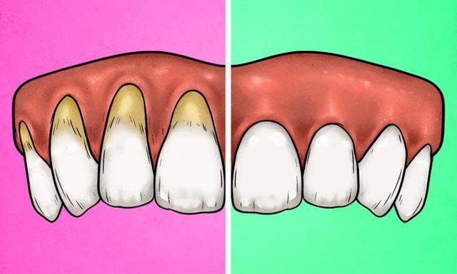 4 dấu hiệu cho thấy bạn đang đánh răng sai cách - Ảnh 1.