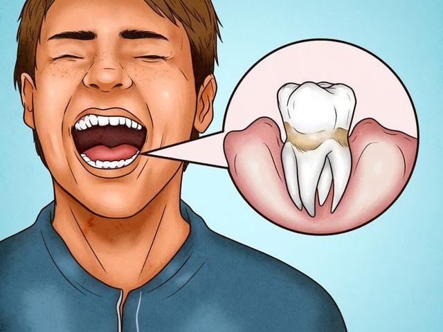 4 dấu hiệu cho thấy bạn đang đánh răng sai cách - Ảnh 4.