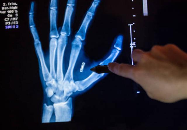 Bác sĩ cấy loạt chip điện tử vào tay để thay cho chìa khóa, thẻ ngân hàng… - Ảnh 2.