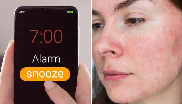 Ngủ nướng có thể làm suy giảm khả năng miễn dịch - ảnh 6