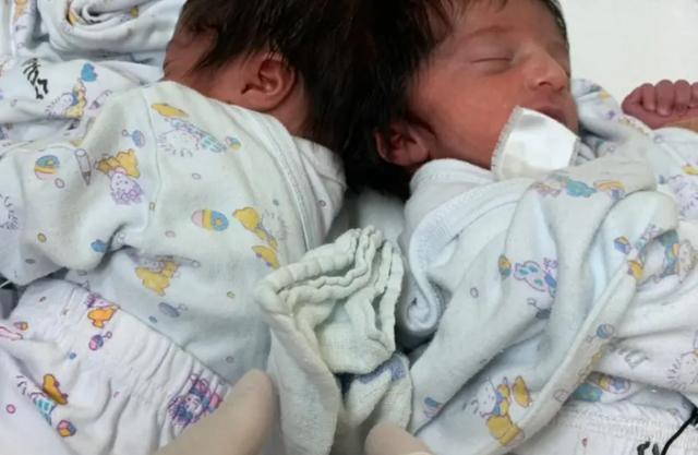 Israel tách thành công cặp song sinh dính liền đầu sau ca phẫu thuật kéo dài 12 giờ - ảnh 1