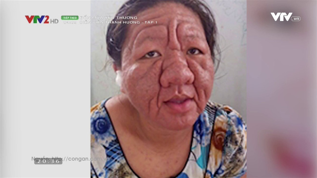 Hỏng da và những hệ lụy không ngờ vì dùng mỹ phẩm chứa corticoid - ảnh 1