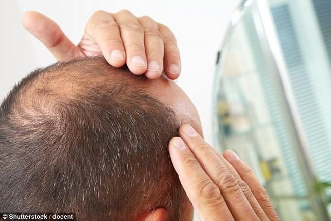 Nguy cơ bệnh tim mạch tăng cao ở những người hói đầu và có tóc bạc sớm - ảnh 2
