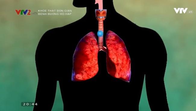 Coi chừng biến chứng nguy hiểm của viêm phổi khi trời lạnh - ảnh 1
