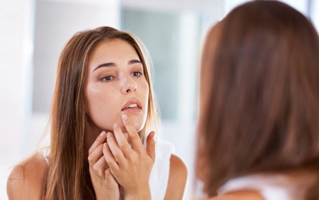 Tiết lộ phương pháp trị mụn viêm nấm bằng dầu gội - ảnh 3