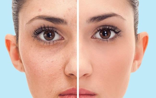5 tác dụng tuyệt vời cho da khi tắm nước mát - ảnh 6