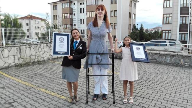 Kỷ lục Guinness xác nhận người phụ nữ cao nhất thế giới ở Thổ Nhĩ Kỳ - ảnh 5