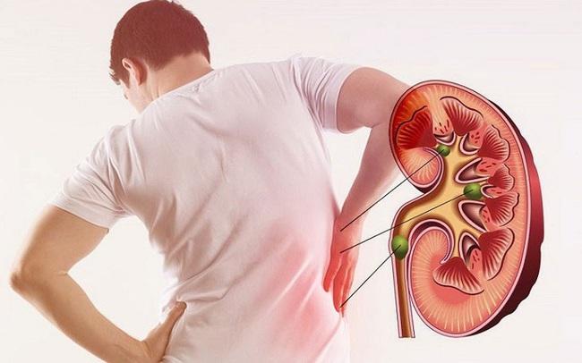 7 triệu chứng phổ biến của bệnh thận - ảnh 8