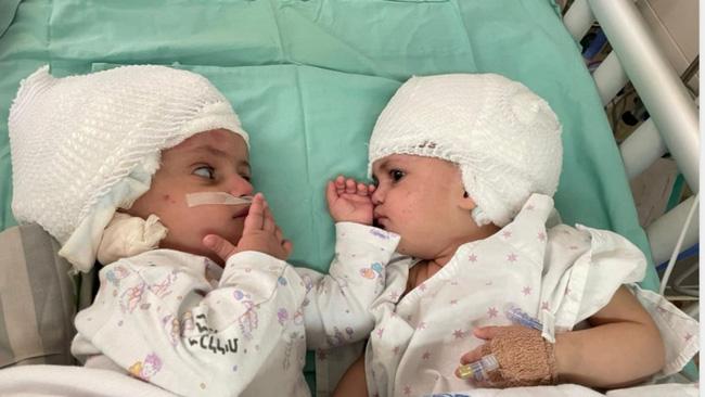 Israel tách thành công cặp song sinh dính liền đầu sau ca phẫu thuật kéo dài 12 giờ - ảnh 4