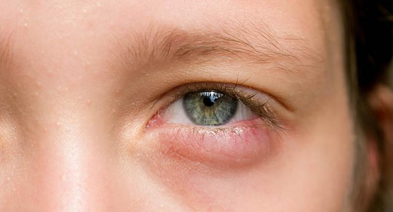 bọng mắt do khóc