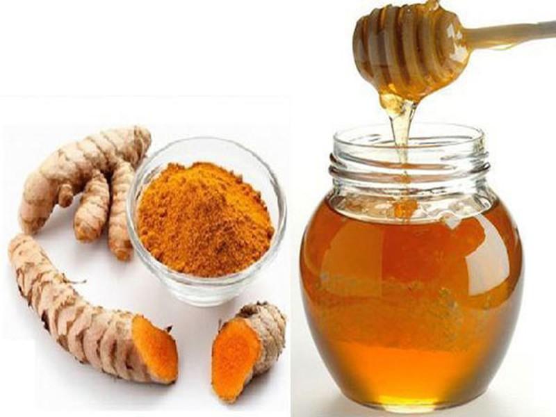 Nghệ, mật ong có chữa được trào ngược dạ dày thực quản? | VTV.VN