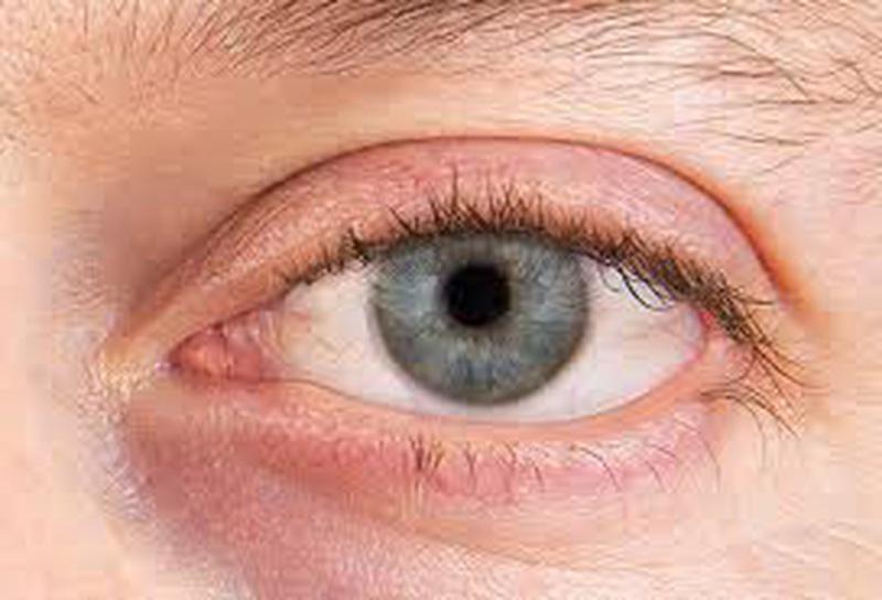 Mắt đỏ thì phải làm sao? Nguyên nhân dẫn đến mắt bị đỏ