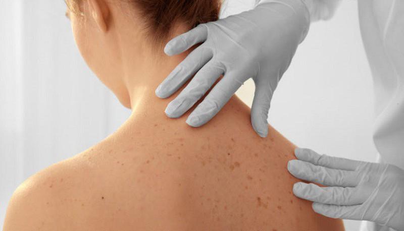 Người da sáng màu, sống ở nơi tiếp xúc nhiều với mặt trời thì tốt nhất là nên đi khám ung thư da thường xuyên để đảm bảo an toàn nhé.