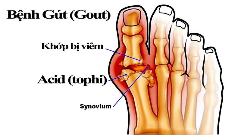Kết quả hình ảnh cho vì sao tiểu đường dễ mắc bệnh gout