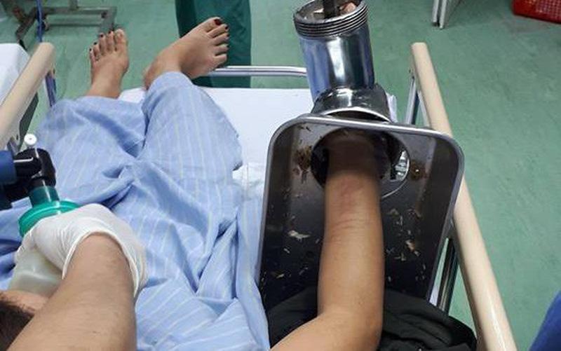 Xay thịt nấu bữa trưa, người phụ nữ bị cuốn cả bàn tay vào máy xay thịt    VTV.VN