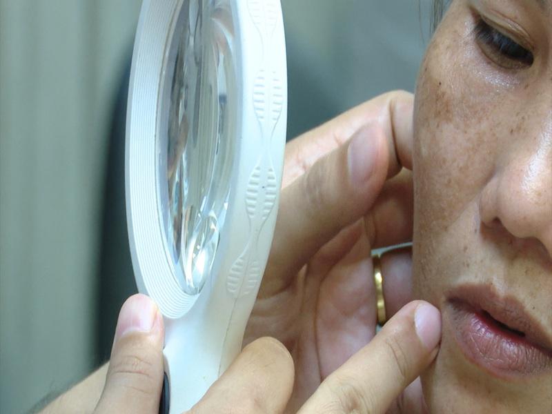 UV ở mức nguy hại, người bị rám má, viêm da tăng mạnh - ảnh 1
