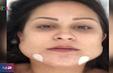 Hàng loạt trường hợp mặt biến dạng vì phẫu thuật thẩm mỹ chui tại Brazil