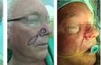 Tạo hình thành công cho nhiều bệnh nhân khuyết hổng vùng đầu mặt cổ