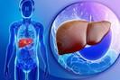 Điểm danh những tác nhân gây ung thư gan