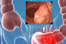 Chuyên gia chỉ rõ các dấu hiệu nguy cơ ung thư đại trực tràng