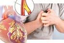 Cẩn trọng cơn đau ngực cấp tính báo động bệnh mạch vành nguy hiểm