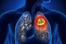Ung thư phổi và những yếu tố nguy cơ