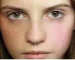 Điều trị nám da cần lâu dài và đúng cách