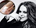 Lindsay Lohan đau đớn vì tai nạn kinh hoàng