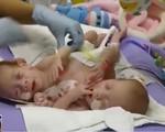Israel tách thành công cặp song sinh dính liền đầu sau ca phẫu thuật kéo dài 12 giờ - ảnh 3