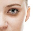 Những điều chưa biết về bệnh thâm quầng mắt