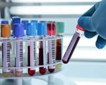 TP.HCM: Tăng cường kiểm soát chất lượng xét nghiệm để liên thông