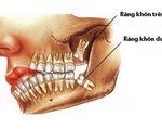 Răng khôn: Nỗi ám ảnh không của riêng ai