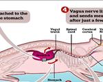 Thiết bị phát tín hiệu báo - giải pháp điều trị cho chứng béo phì