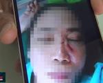 Điều tra vụ giáo viên bị ném đá vào mặt gây thương tích