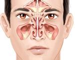 Những biến chứng có thể gặp khi bị viêm xoang cấp tính