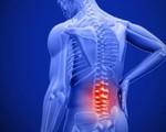 Chủ quan đau, mỏi cổ tá hỏa phát hiện bị viêm cột sống dính khớp thể trục