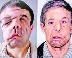 Người đàn ông có 3 khuôn mặt sau 2 lần cấy ghép