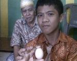 Ly kỳ câu chuyện cậu bé người Indonesia 'đẻ' trứng trong hai năm