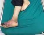 Hoại tử bàn chân do biến chứng của bệnh đái tháo đường