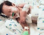 Bé gái 10 tháng tuổi nhiễm 2 loại siêu vi khuẩn kháng tất cả kháng sinh