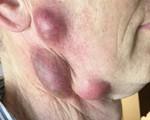 Nổi nhiều hạch to trên mặt do bị lây nhiễm vi khuẩn từ mèo chết